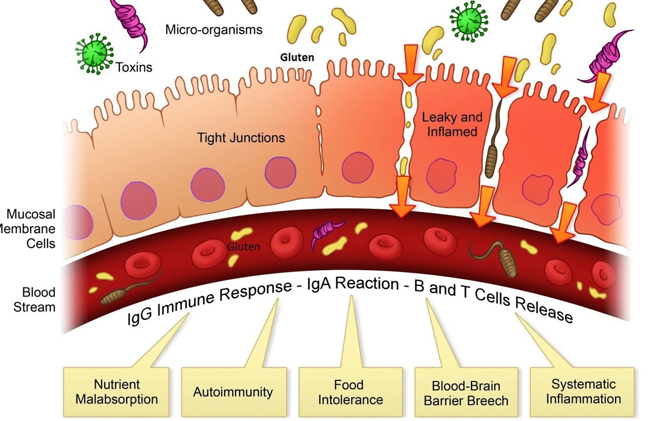 Can Leaky Gut Syndrome Cause Autoimmune Problems?